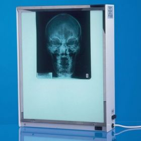AW Select X-Ray Viewer, Quadruple, with Vertical Fitment