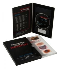 Schuco Interactive Atlas Of Dermoscopy